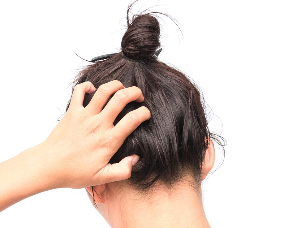 Lady scratching her head due to inflamed, itchy scalp