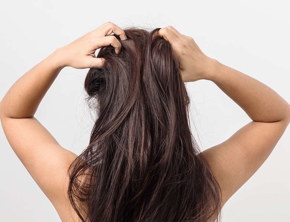 Troubled woman due to her hair and scalp problems