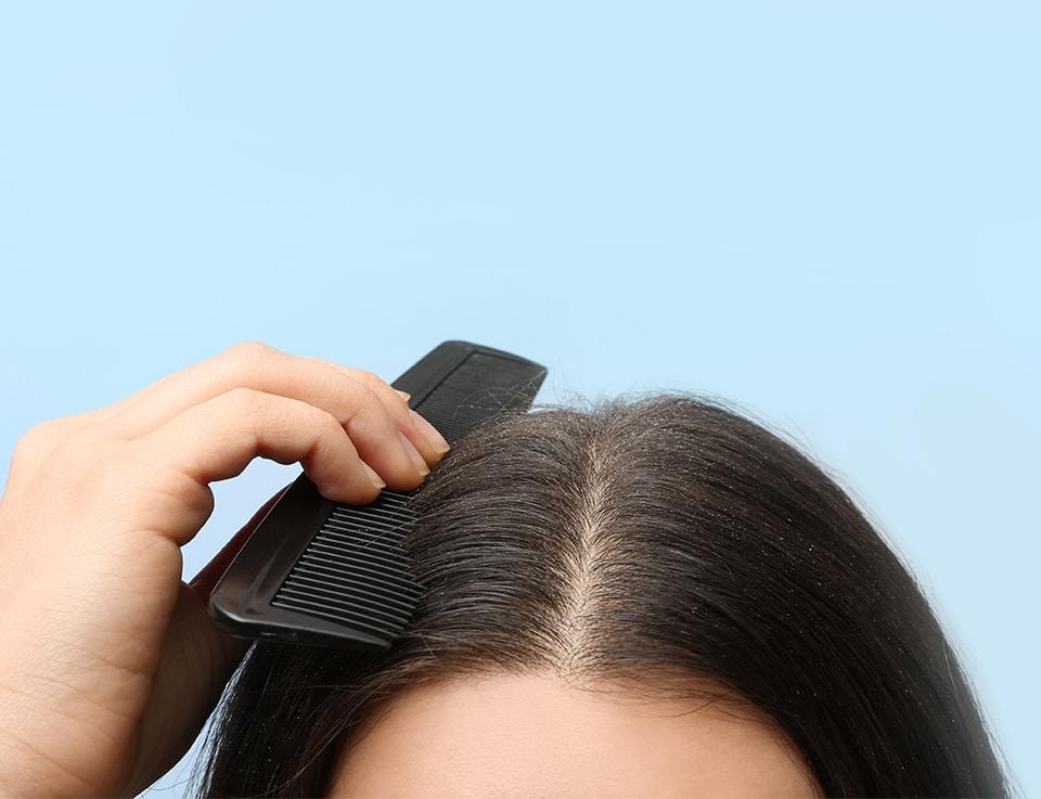 Visible dandruff on a woman's sensitive scalp