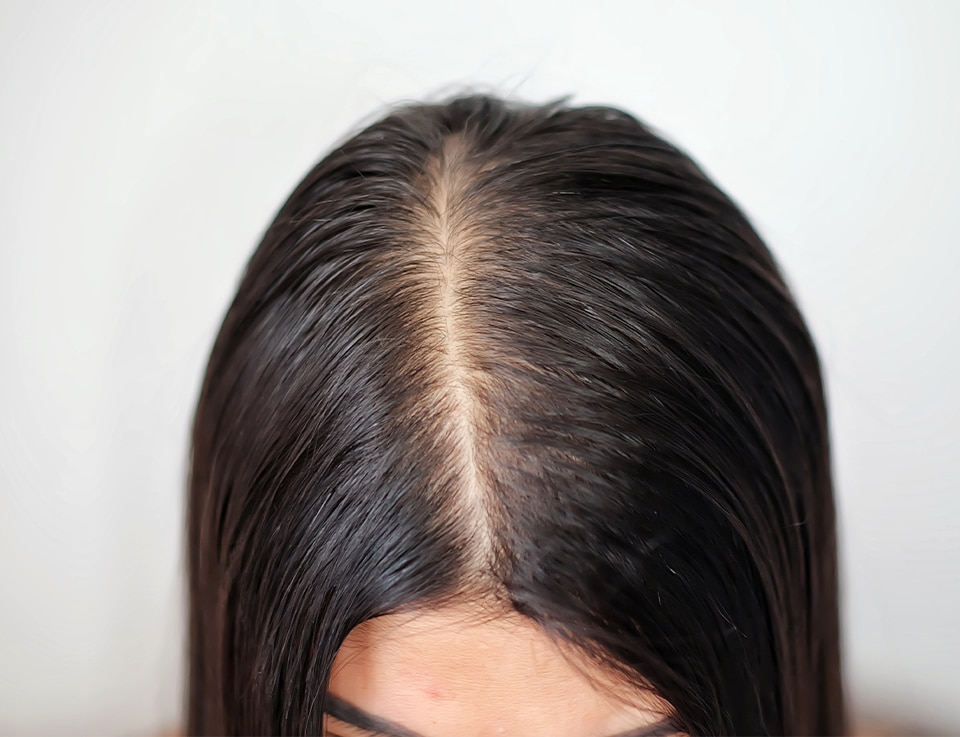Woman with oily and thinning hairline