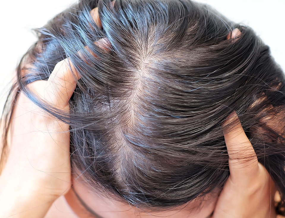 PHS HAIRSCIENCE®️ What causes oily scalp solution for oily scalp