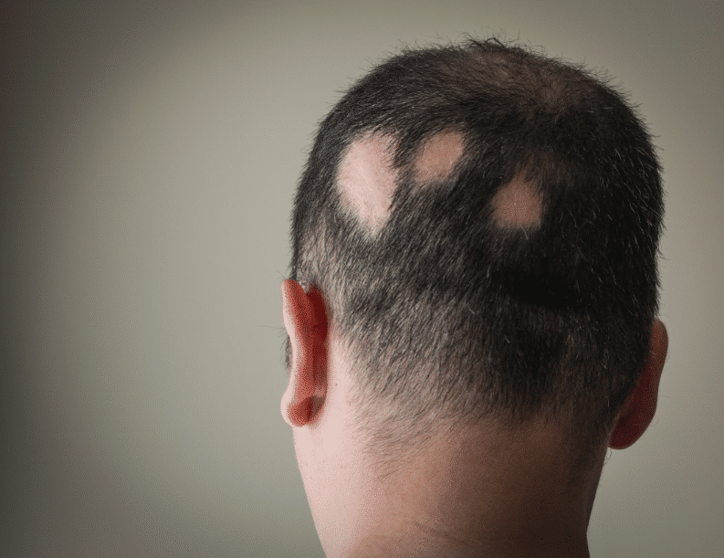 Man with bald spots due to lupus