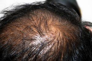 men oily scalp