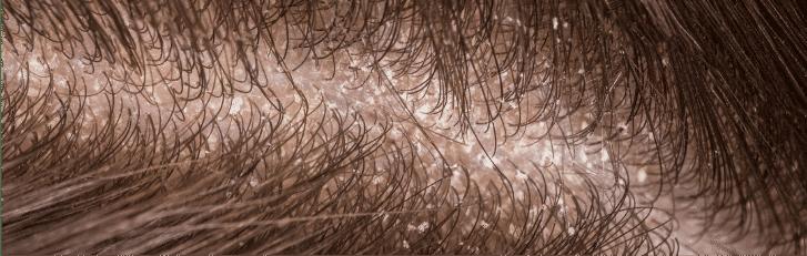 PHS HAIRSCIENCE Advanced Scalp Repair Treatment (Dry Scalp)