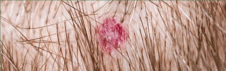 PHS HAIRSCIENCE Advanced Scalp Repair Treatment (Oily and Acne)