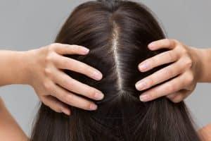A woman is massaging her scalp